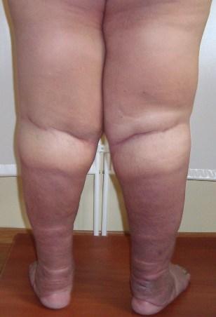 У меня заболевание ноги лимфостаз как лечить